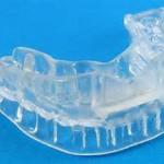 顎関節症 歯周病に注意